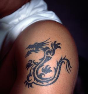 remove a tattoo