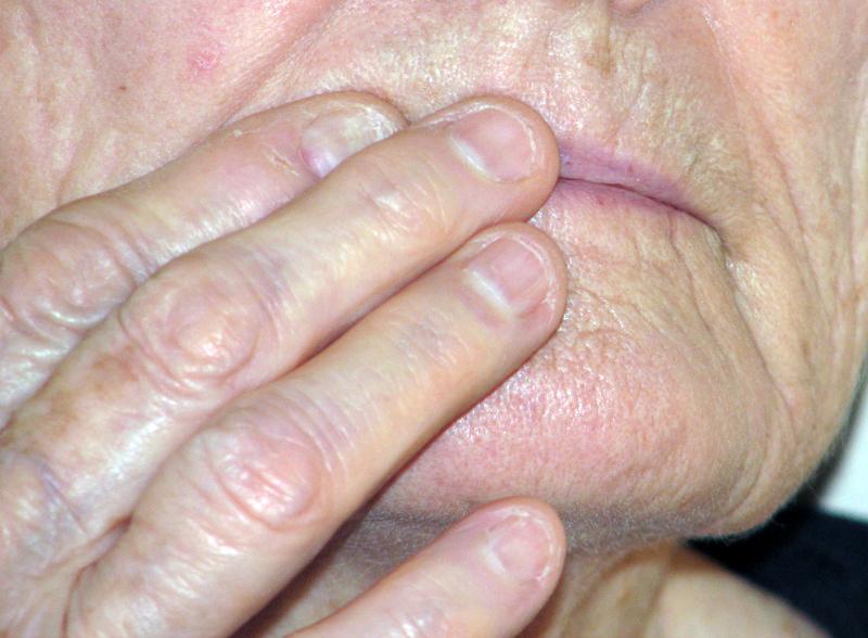 cold sore essential oil remedy