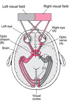 how to fix optic nerve damage