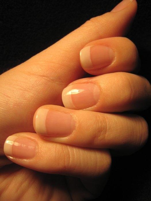 Atopic dermatite allergica